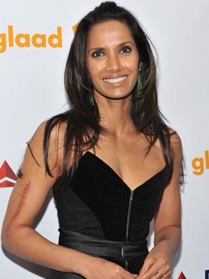Padma Lakshmi Scar Car Accident